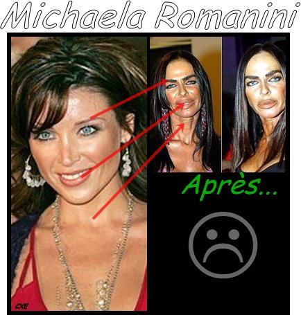 Michaela Romanini Michaela Romanini Before